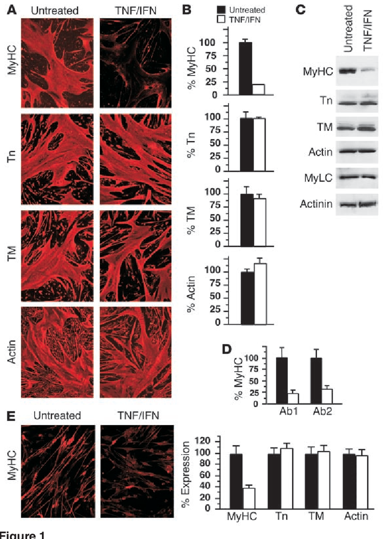 Figure 1 MyHC is selectively targeted by TNF/IFN signaling. C2C12 myoblasts were differentiated in DM for 3 days and subsequently switched to medium alone or containing TNF (10 ng/ml) and IFN (100 U/ml) for 48 hours. (A) Immunofluorescence to detect expression of myofibrillar proteins (MyHC, fast twitch; troponin T [Tn]; tropomyosin, α and β [TM]; actin, α skeletal). Images are shown at ×20 magnification. (B) Immunostained expression levels of myofibrillar proteins were quantitated using Zeiss AxioVision software (Carl Zeiss Inc., Thornwood, New York, USA). The data were calculated from a minimum of ten randomly chosen fields of cells at ×4 magnification. (C) Whole-cell extracts were prepared from untreated or TNF/ IFN–treated myocytes, and 50 μg total protein was used in Western analyses to probe for myofibrillar proteins (troponin; α- and β-tropomyosin; MyLC, myosin light chain). (D) Immunofluorescence of untreated (black bars) or TNF/IFN–treated (hatched bars) C2C12 myotubes, probing for MyHC (Ab1, MyHC antibody MY-32; Ab2, MyHC antibody MF20). (E) Primary myotubes were either untreated (black bars) or treated with TNF and IFN (hatched bars) for 48 hours. Cells were stained by immunofluorescence for myofibrillar proteins, and the level of protein expression was quantitated by digital capture and AxioVision software. For histograms, each bar represents mean ± SEM from three independent experiments.