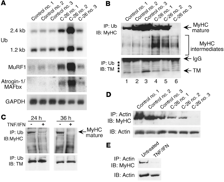 Figure 6 C-26 tumors enhance ubiquitin/E3 ligase expression and MyHC ubiquitination products. Mice were injected in the right flank with either control (n = 3) or C-26 cells (n = 3), and at days 23–25 after injection, tibialis muscles were isolated and prepared for RNA or protein analyses. (A) Northern blots probing for ubiquitin (Ub), MuRF1, and atrogin-1/MAFbx in muscles from control versus C-26–injected mice. (B and C) Homogenates were prepared from mouse muscles or C2C12 myotubes, and protein complexes were subsequently immunoprecipitated overnight with an anti-ubiquitin antibody (IP). Immunoprecipitates were fractionated by SDSPAGE, and immunoblot (IB) analyses probing for MyHC (upper panels) or tropomyosin (TM; lower panels) were performed. The Western blot for MyHC in B was purposely overexposed to accentuate differences in MyHC protein products coupled to ubiquitin (bracketed). Asterisks in the tropomyosin Western blot denote nonspecific bands. (D and E) Homogenates described in B and C were immunoprecipitated with an α-sarcomeric actin antibody (IP), and complexes were fractionated by SDS-PAGE and immunoblotted (IB) for MyHC and α-actin.