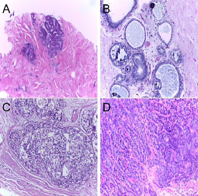 Figure 1 for Classification of Breast Cancer Histology using Deep Learning