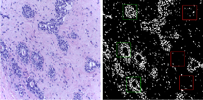 Figure 3 for Classification of Breast Cancer Histology using Deep Learning