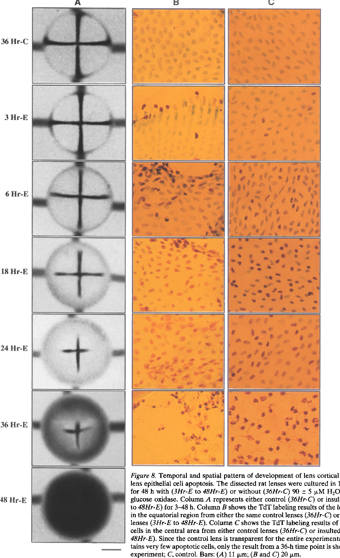 Figure 8. Temporal and spatial pattern of development of lens cortical opacification and lens epithelial cell apoptosis. The dissected rat lenses were cultured in 12 ml medium 199 for 48 h with (3Hr-E to 48Hr-E) or without (36Hr-C) 90 +_ 5 pxM H202 maintained with glucose oxidase. Column A represents either control (36Hr-C) or insulted lenses (3Hr-E to 48Hr-E) for 3-48 h. Column B shows the TdT labeling results of the lens epithelial cells in the equatorial region from either the same control lenses (36Hr-C) or the same insulted lenses (3Hr-E to 48Hr-E). Column C shows the TdT labeling results of the lens epithelial cells in the central area from either control lenses (36Hr-C) or insulted lenses (3Hr-E to 48Hr-E). Since the control lens is transparent for the entire experimental period and contains very few apoptotic cells, only the result from a 36-h time point is shown. Hr, hours; E, experiment; C, control. Bars: (A) I1 p~m; (B and C) 20 ixm.