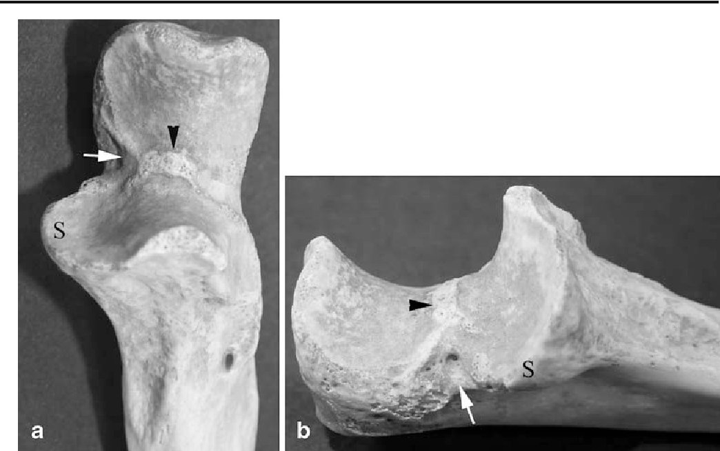 Fig. 5 Medial aspect of elbow: a AP, b lateral. Normal anatomy of the trochlear groove shows the medial cortical notch (arrow), the transverse trochlear ridge (arrowhead), and sublime tubercle (S)