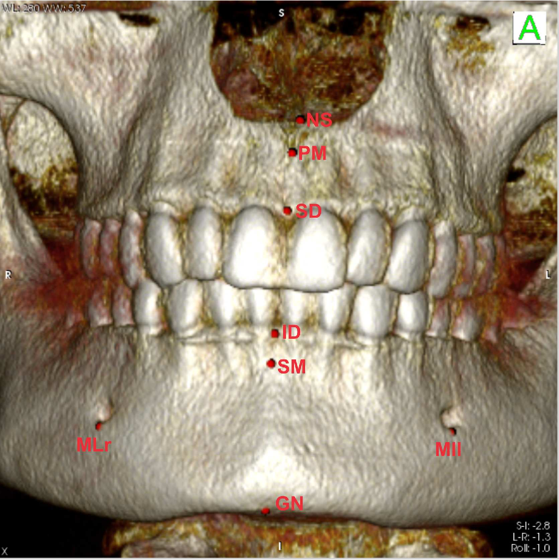 Practical Application of Anatomy of the Oral Cavity in Forensic ...