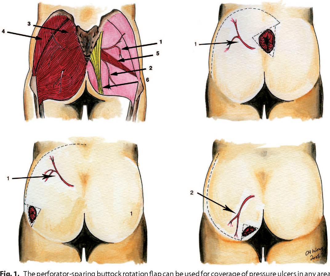 PDF] The perforator-sparing buttock rotation flap for coverage of