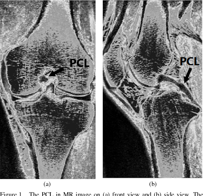 Computer-Aided Segmentation System of Posterior Cruciate Ligament in ...