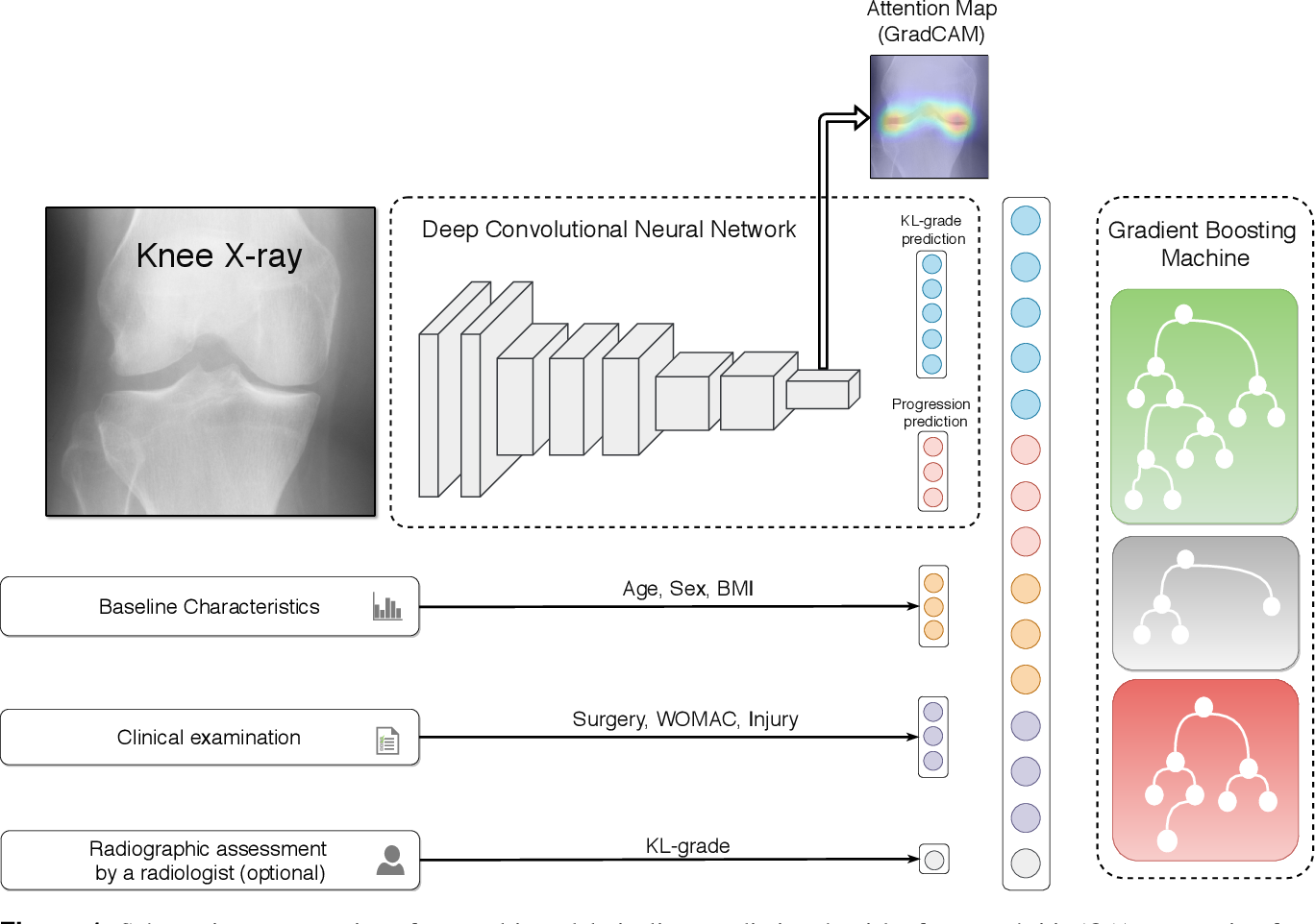 Figure 1 for Multimodal Machine Learning-based Knee Osteoarthritis Progression Prediction from Plain Radiographs and Clinical Data