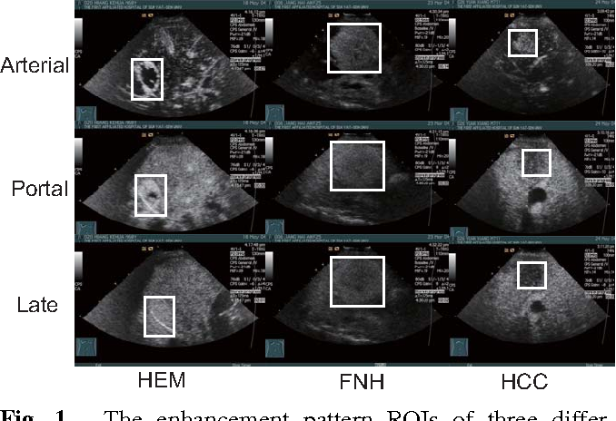 Figure 1 for Recognizing Focal Liver Lesions in Contrast-Enhanced Ultrasound with Discriminatively Trained Spatio-Temporal Model