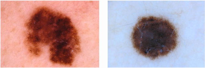 Figure 1 for Multi-task Learning with Crowdsourced Features Improves Skin Lesion Diagnosis