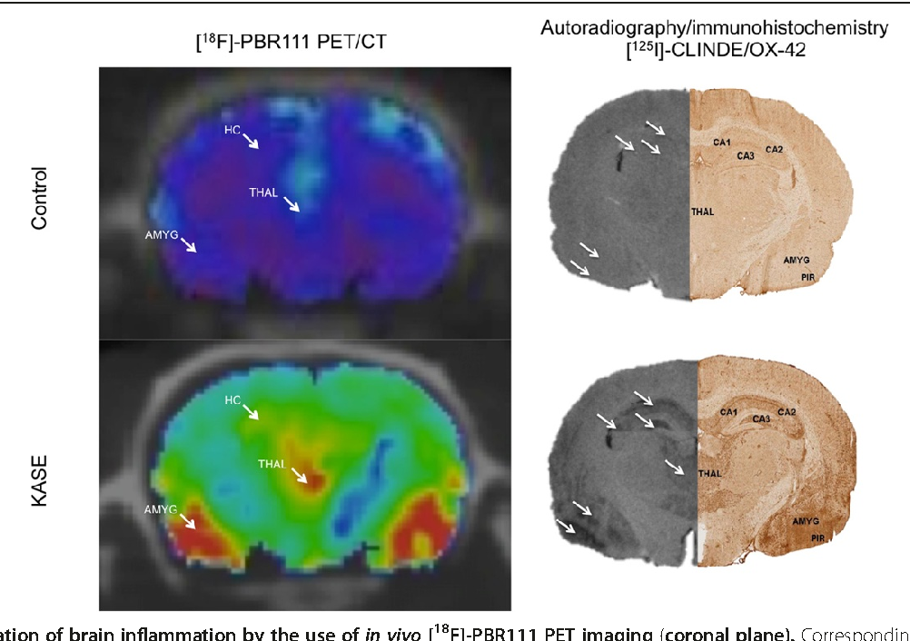 Figure 5 Evaluation of brain inflammation by the use of in vivo [18F]autoradiography and immunohistochemistry on the coronal sections in the induction are shown. Arrows indicate the different brain regions named on amygdala; PIR, piriform cortex.