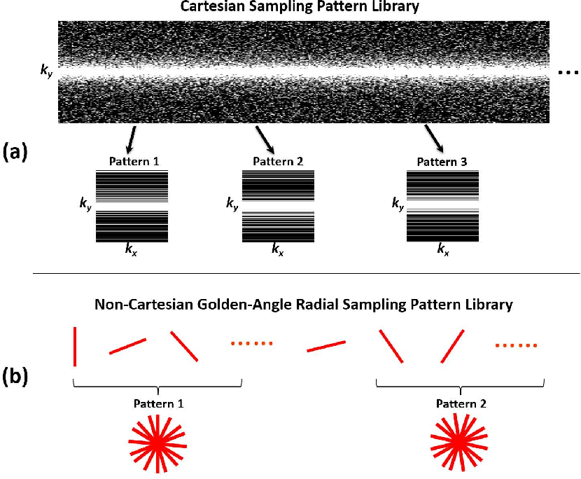 Figure 4 for SANTIS: Sampling-Augmented Neural neTwork with Incoherent Structure for MR image reconstruction