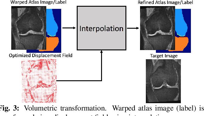 Figure 4 for VoteNet++: Registration Refinement for Multi-Atlas Segmentation