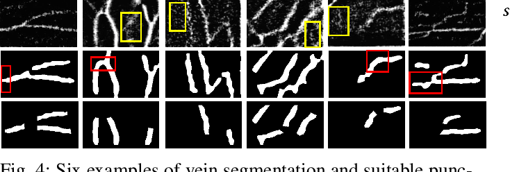 Figure 4 for VeniBot: Towards Autonomous Venipuncture with Automatic Puncture Area and Angle Regression from NIR Images