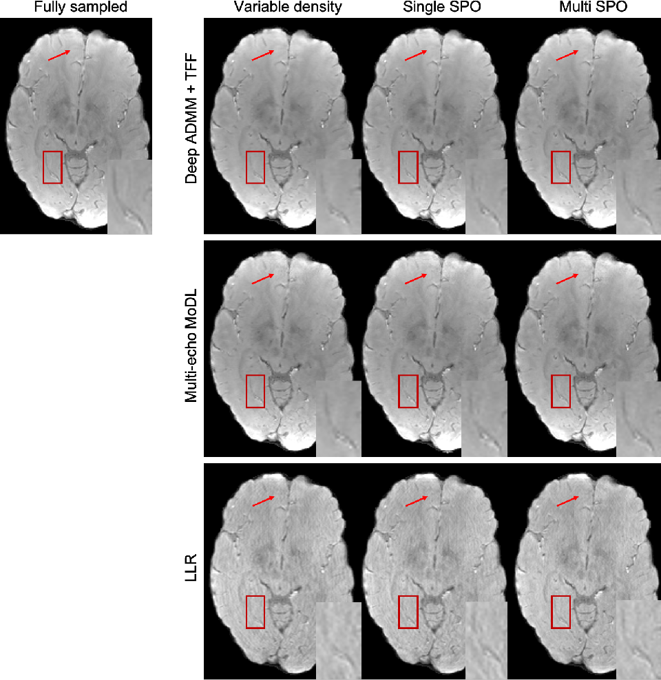 Figure 4 for Temporal Feature Fusion with Sampling Pattern Optimization for Multi-echo Gradient Echo Acquisition and Image Reconstruction
