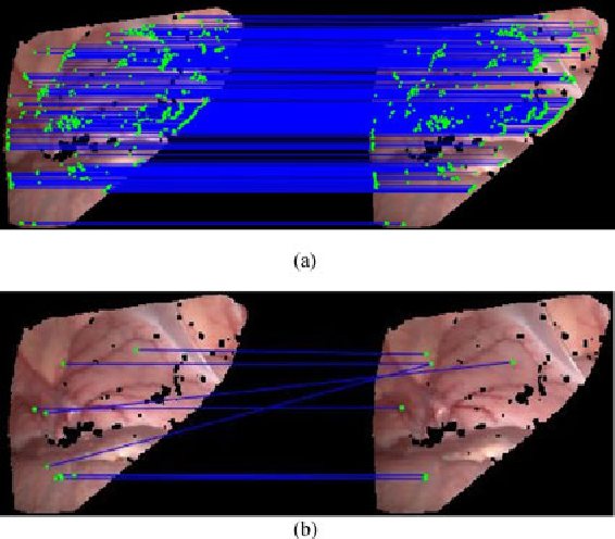 Figure 2 for Dynamic Reconstruction of Deformable Soft-tissue with Stereo Scope in Minimal Invasive Surgery
