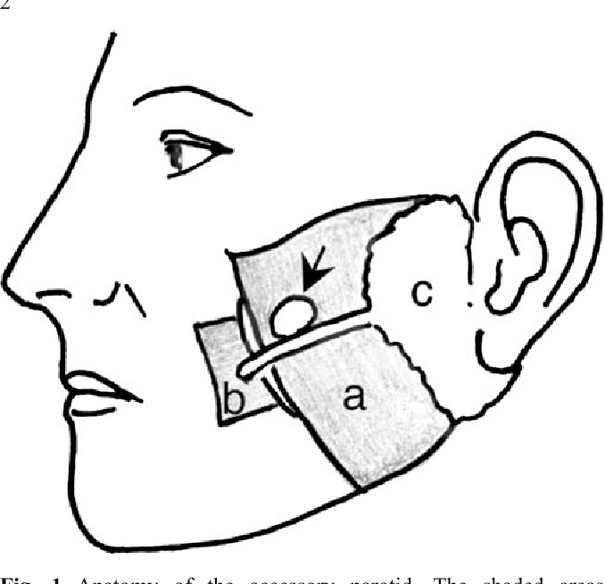 Figure 1 From Lesions Of The Accessory Parotid Gland In Children