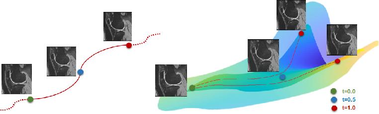 Figure 1 for Anatomical Data Augmentation via Fluid-based Image Registration