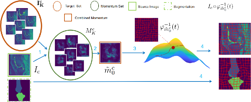 Figure 2 for Anatomical Data Augmentation via Fluid-based Image Registration