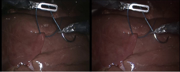 Figure 1 for Stereo Endoscopic Image Super-Resolution Using Disparity-Constrained Parallel Attention