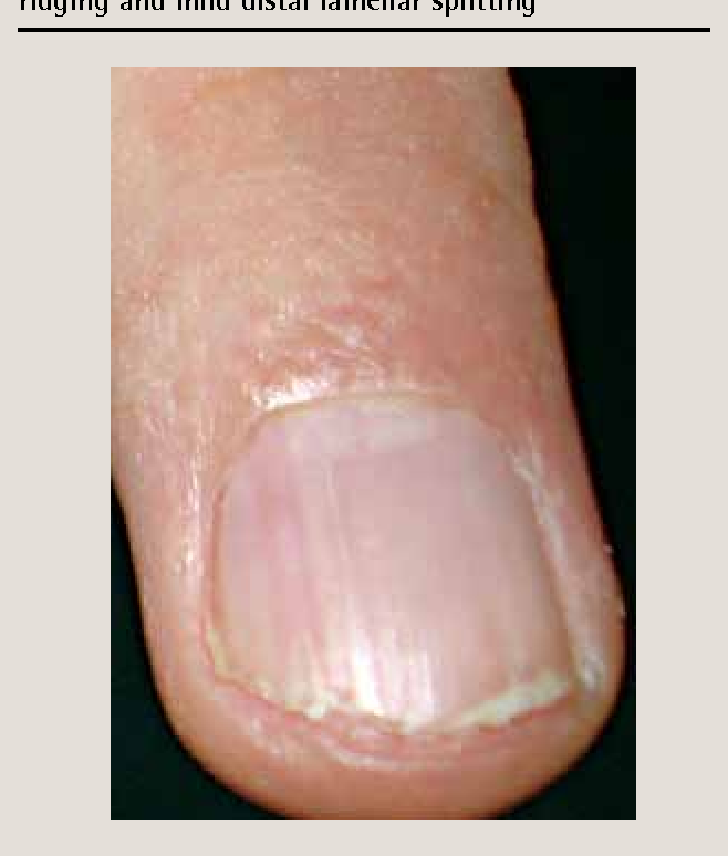 Common nail changes and disorders in older people: Diagnosis and ...