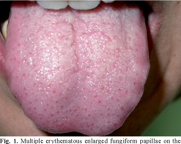 Lie Bumps (Transient Lingual Papillitis)