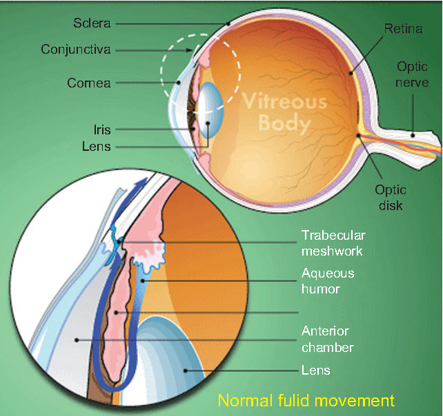 research papers on glaucoma Download thesis statement on what is glaucoma in our database or order an original thesis paper that will be written by one of our staff writers and delivered according to the deadline.