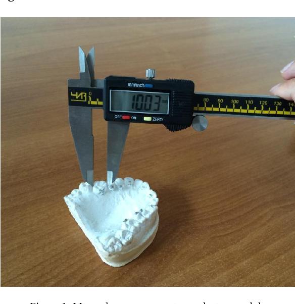 Figure 1 for Automatic Recognition of Landmarks on Digital Dental Models