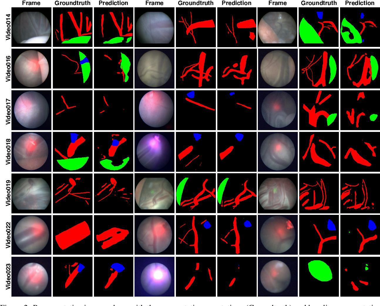 Figure 3 for FetReg: Placental Vessel Segmentation and Registration in Fetoscopy Challenge Dataset