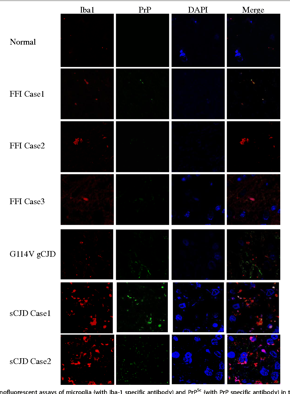 Figure 4 Immunofluorescent assays of microglia (with Iba-1 specific antibody) and PrPSc (with PrP specific antibody) in the temporal lobes of different human prion diseases. The images of PrPSc (green), Iba-1 (red), DAPI (blue) and merge are monitored under a confocal microscopy and indicated above. Various prion diseases and normal control are indicated on the left.