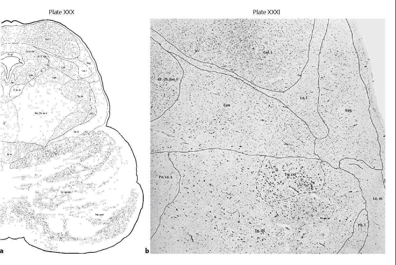 Pedunculopontine Nucleus Region Deep Brain Stimulation in Parkinson ...