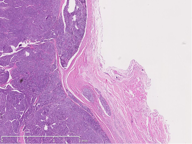 Figure 6 from [Thyroid pathology. Case No. 5: Poorly differentiated ...