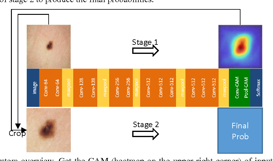 Figure 1 for Skin Lesion Classification using Class Activation Map