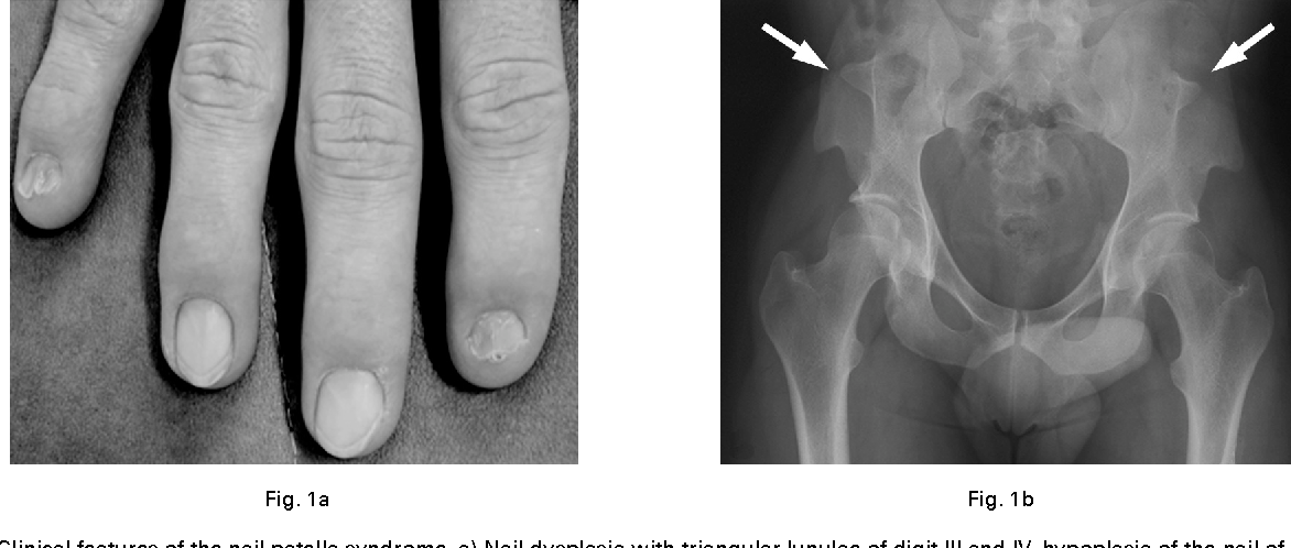 Radiological characteristics of the knee joint in nail patella ...