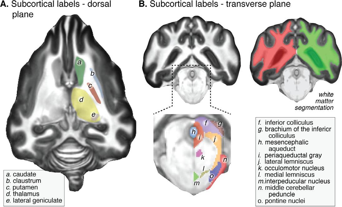 A Digital Atlas of the Dog Brain - Semantic Scholar
