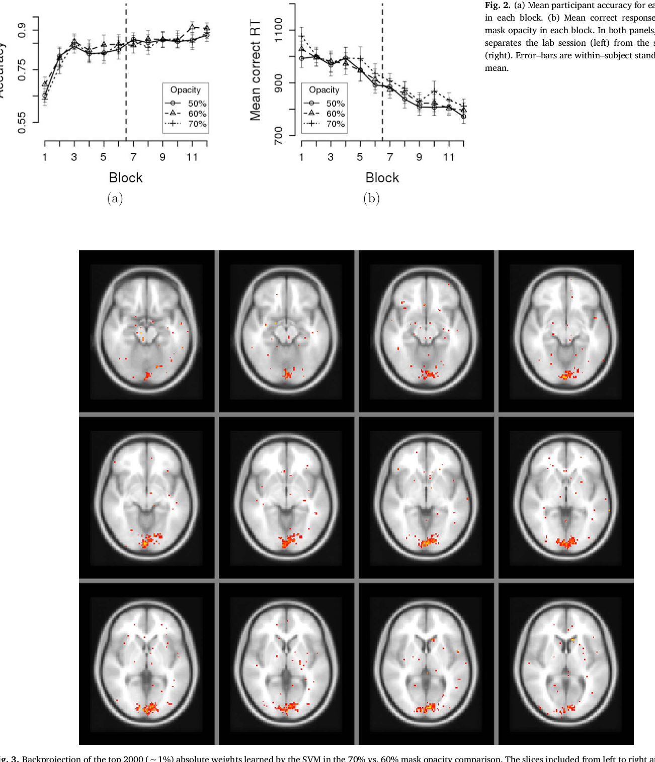 The effect of integration masking on visual processing in