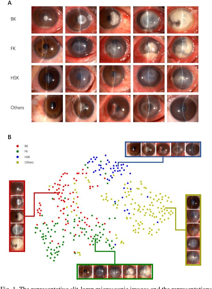 Figure 1 for Deep Sequential Feature Learning in Clinical Image Classification of Infectious Keratitis