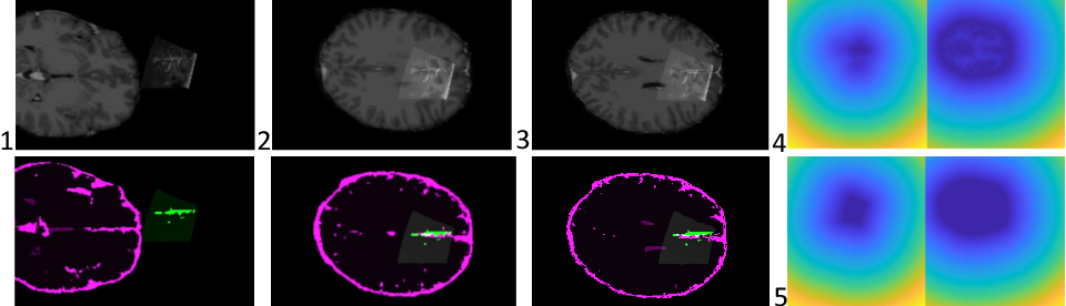 Figure 2 for Initialize globally before acting locally: Enabling Landmark-free 3D US to MRI Registration
