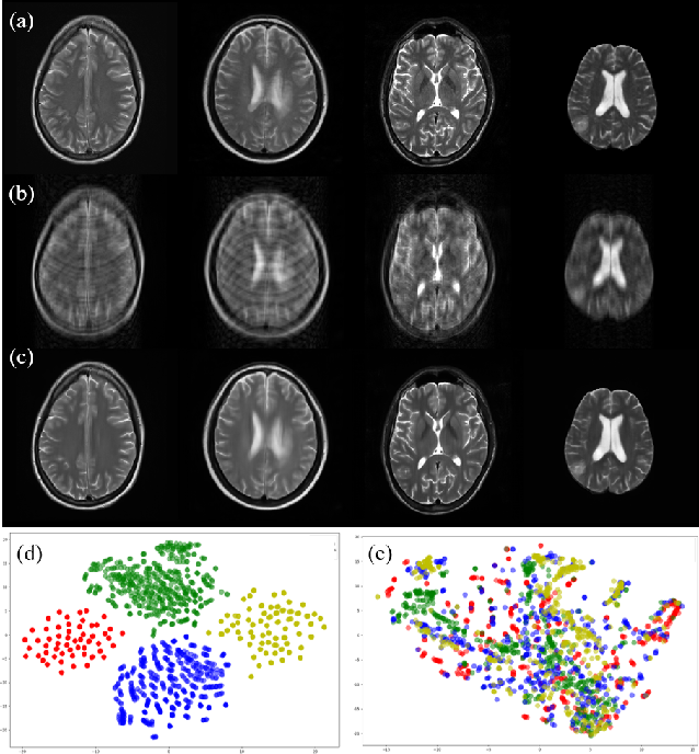 Figure 1 for Multi-institutional Collaborations for Improving Deep Learning-based Magnetic Resonance Image Reconstruction Using Federated Learning