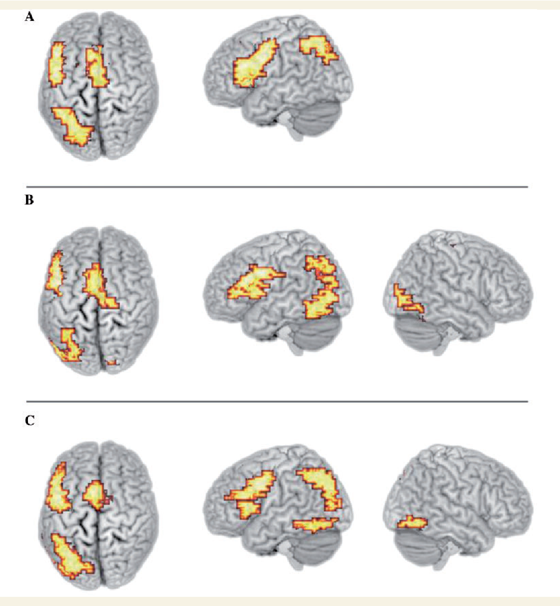 Enhanced activation of the left inferior frontal gyrus in deaf and ...