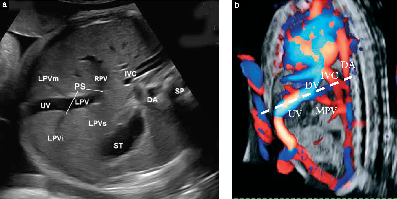 In-utero evaluation of the fetal umbilical-portal venous system: two ...