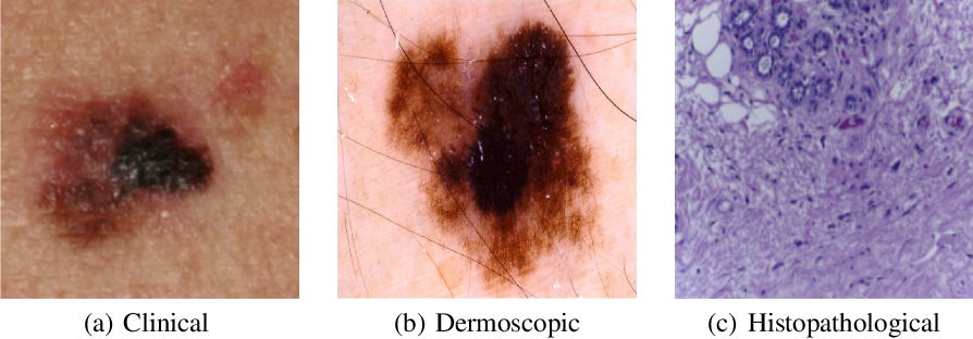 Figure 2 for Recent advances in deep learning applied to skin cancer detection