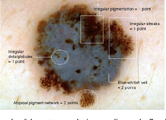 Figure 3 for Recent advances in deep learning applied to skin cancer detection