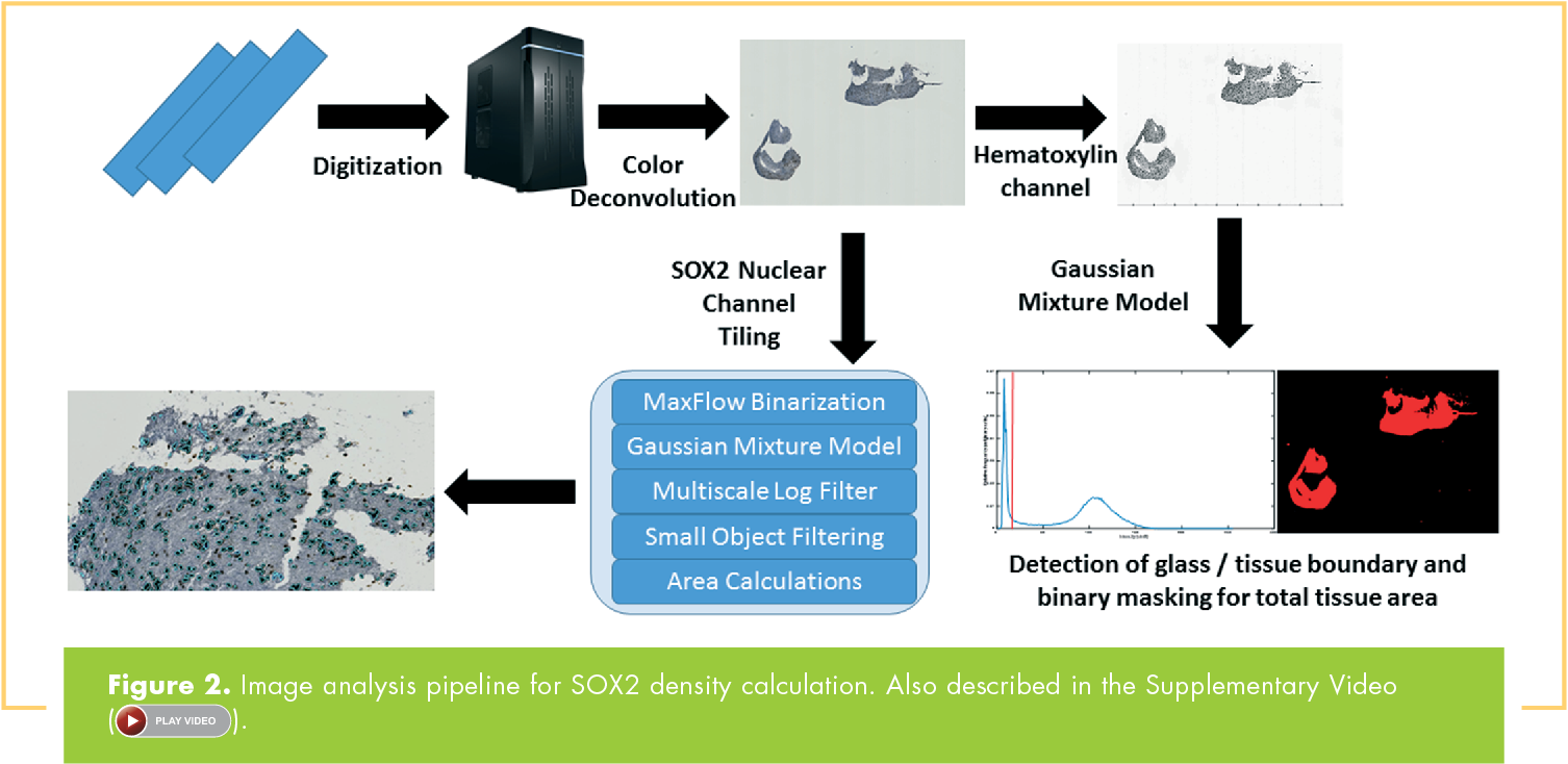 Figure 2. Image analysis pipeline for SOX2 density calculation. Also described in the Supplementary Video ( PLAY VIDEO ).