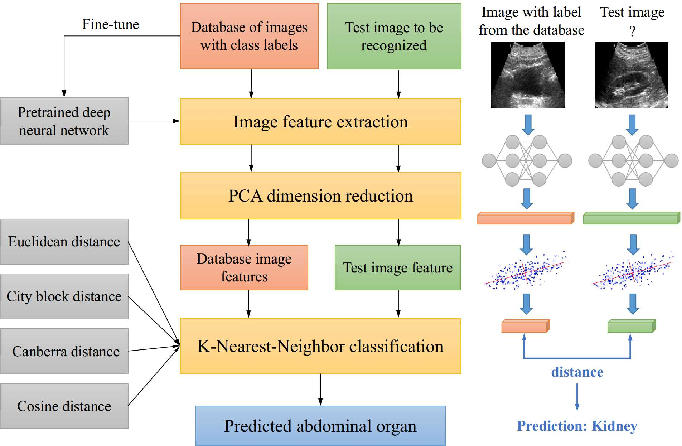 Figure 1 for Automatic Recognition of Abdominal Organs in Ultrasound Images based on Deep Neural Networks and K-Nearest-Neighbor Classification