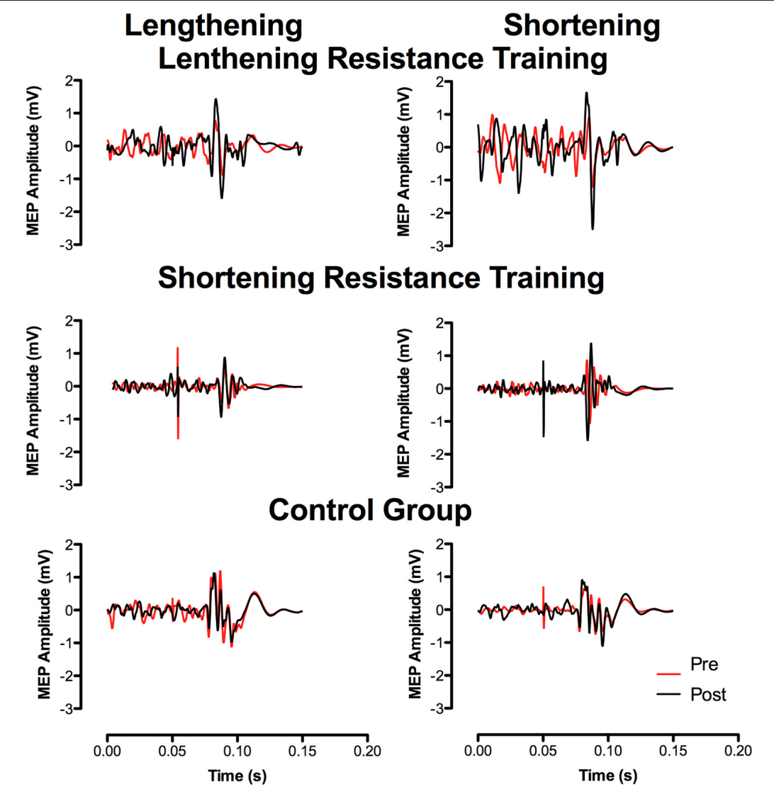 FIGURE 3 | Representative traces of MEP's pre and post resistance training recorded at 80% of relative MVC.