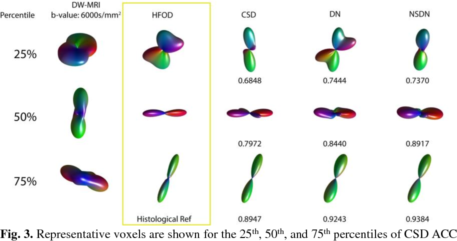 Figure 3 for Inter-Scanner Harmonization of High Angular Resolution DW-MRI using Null Space Deep Learning