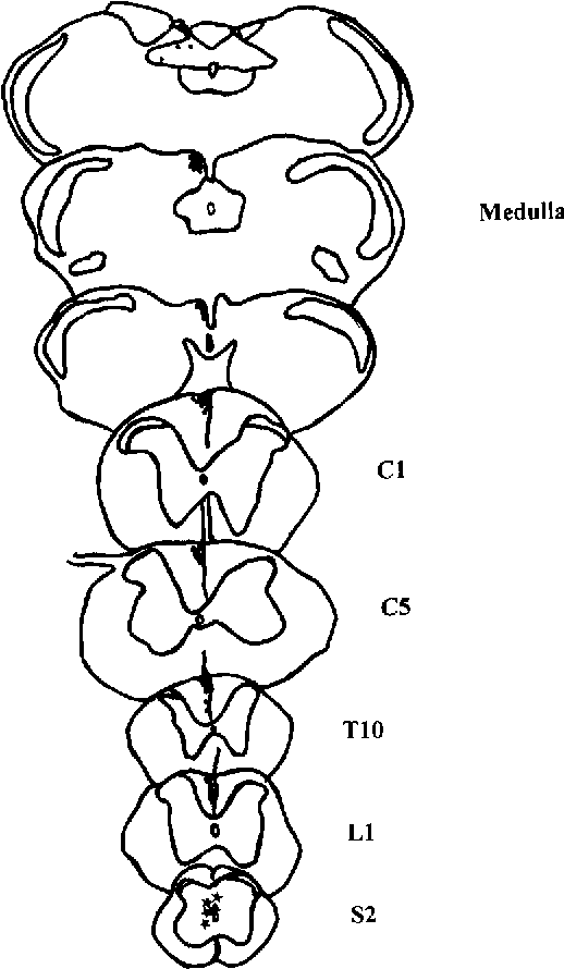 Figure 4 From Is There A Pathway In The Posterior Funiculus That