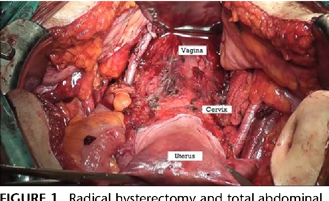 Vaginal cancer surgery