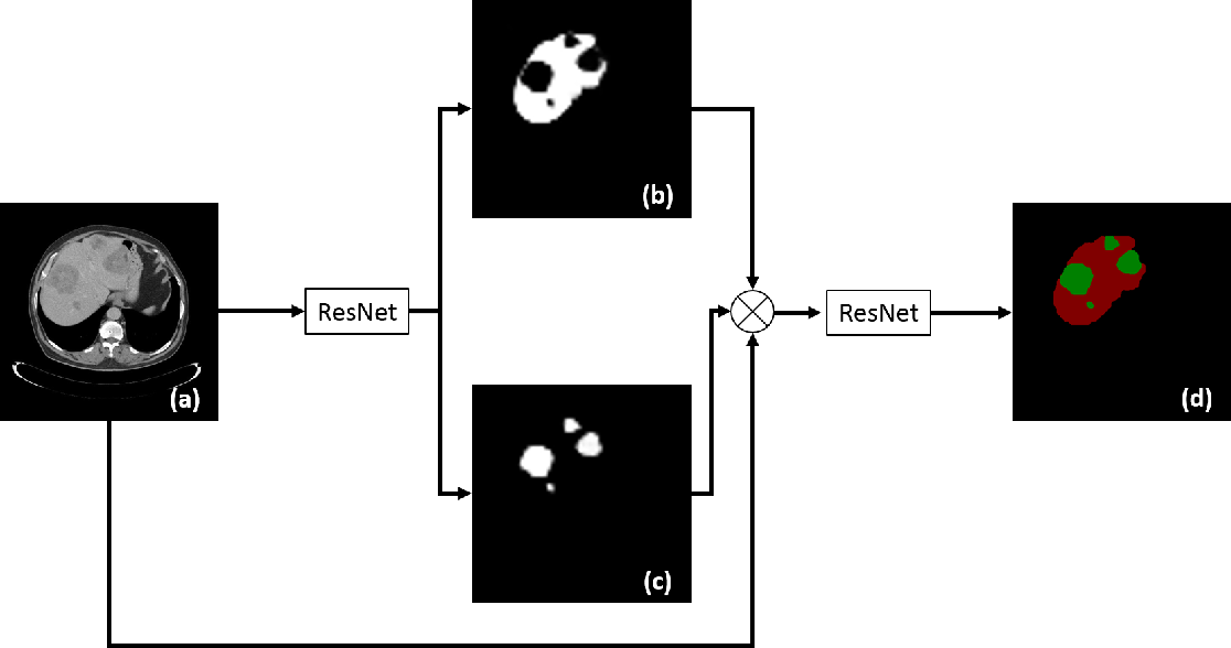 Figure 3 for Automatic Liver Lesion Detection using Cascaded Deep Residual Networks