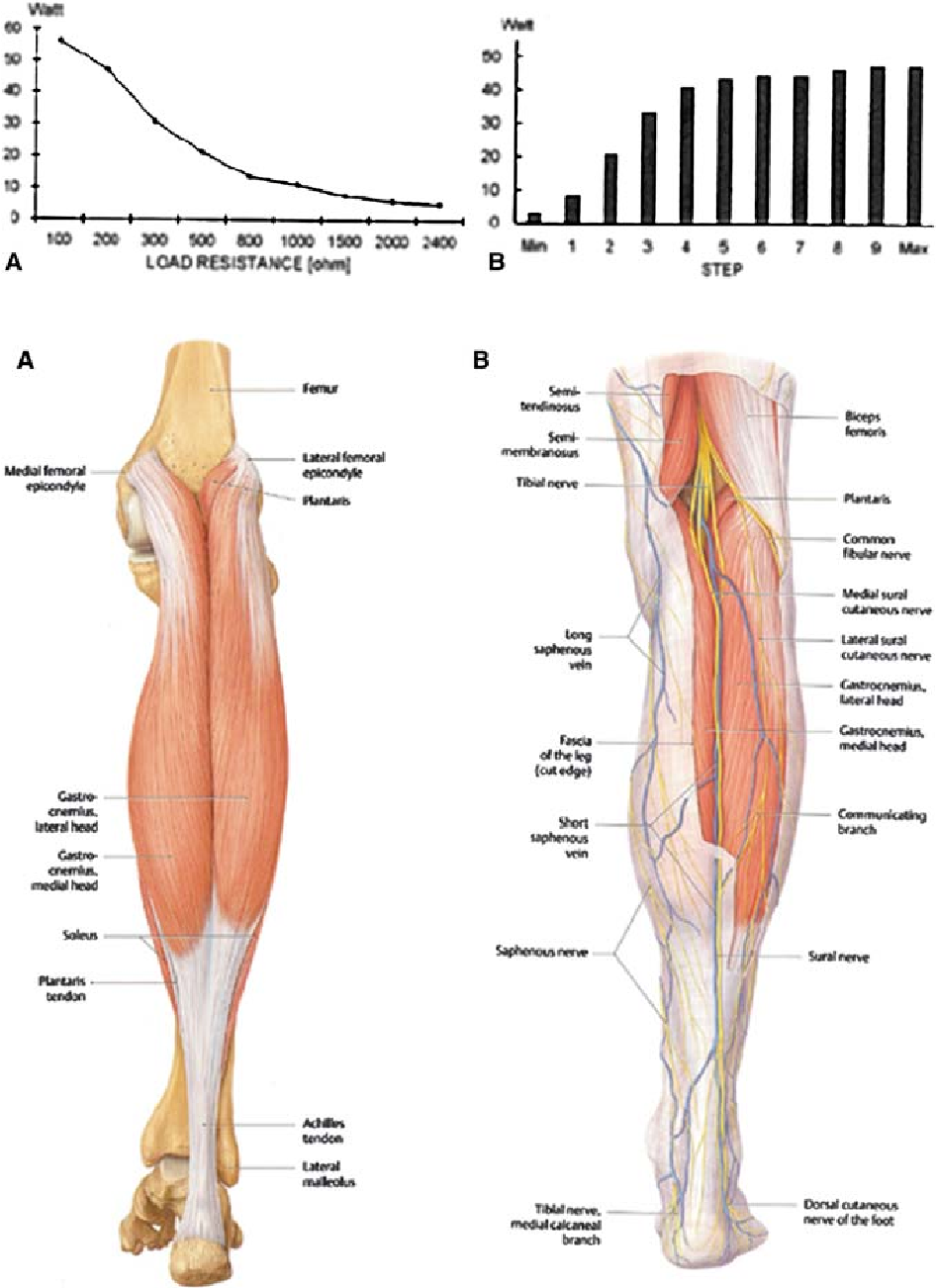 Radiofrequency Volume Reduction Of Gastrocnemius Muscle Hypertrophy