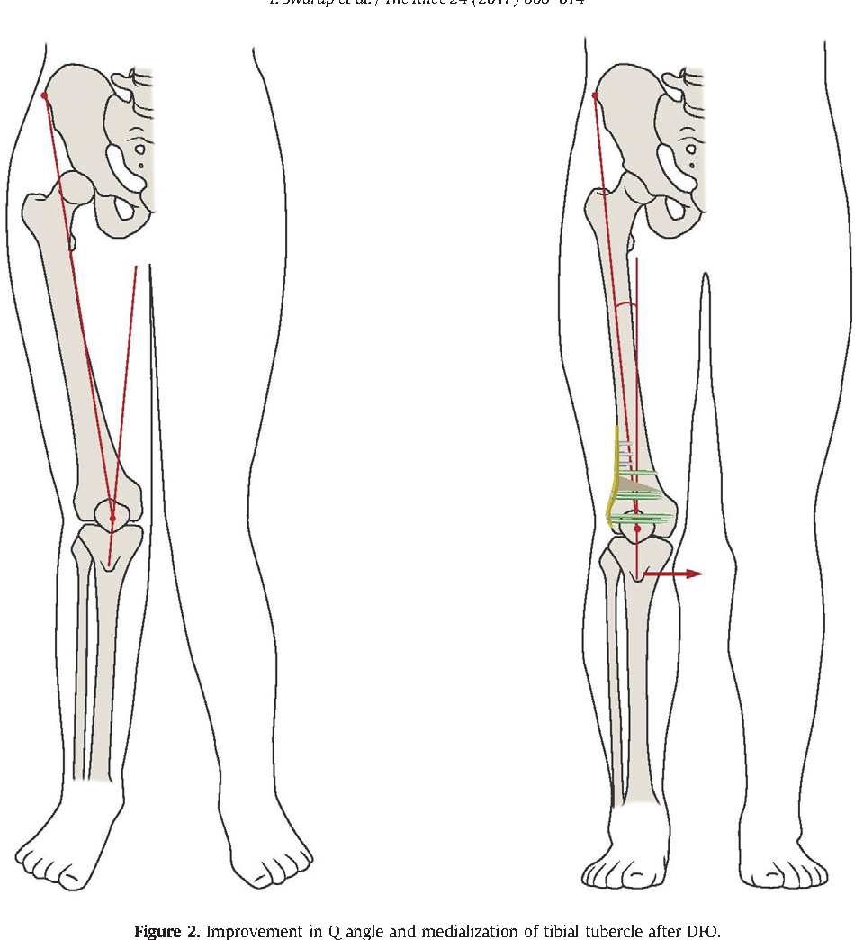 Patellar instability treated with distal femoral osteotomy ...